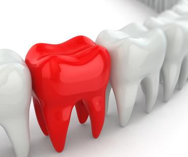 Emergency dentist in Fresno