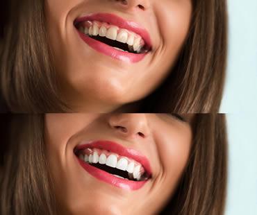 Teeth whitening Fresno